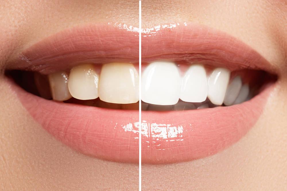 Consigue unos dientes blancos como las estrellas de cine