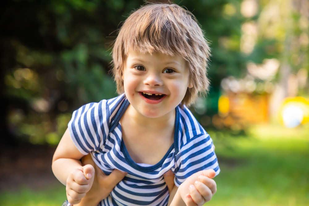 Cómo cuidar la salud bucal de las personas con Síndrome de Down